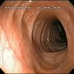 Endoscopy normal gut
