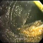 Endoscopy image of a person with chronic constipation 2